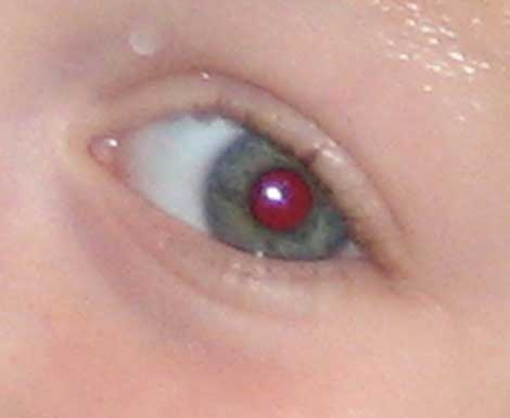 red_eye_before